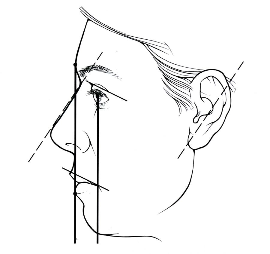 Facial Proportions And Muscles Mikki Senkarik