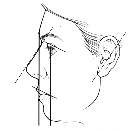 Facial Proportions 2